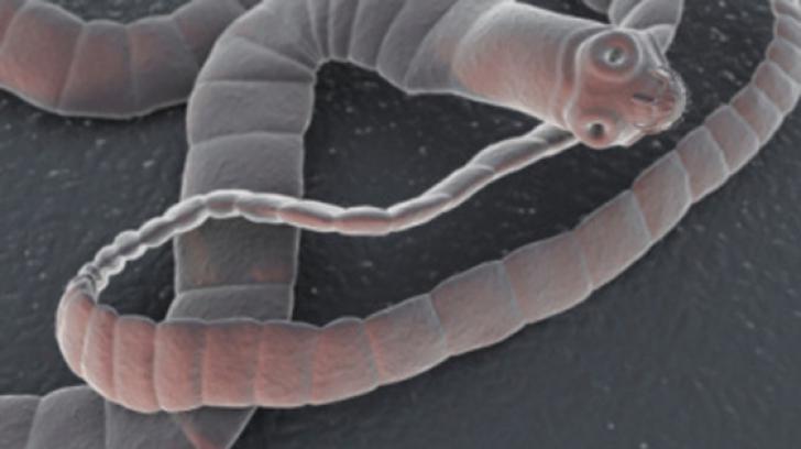 cum să elimini rapid viermii de ce negi genitale
