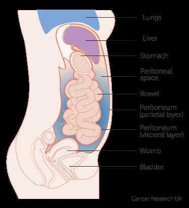 peritoneal cancer treatment uk