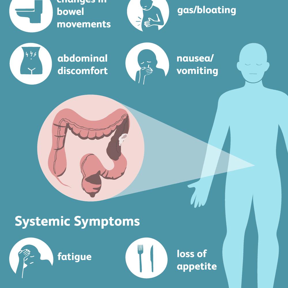 abdominal distension rectal cancer secțiunea 1 prezentare generală a platyhelminthes