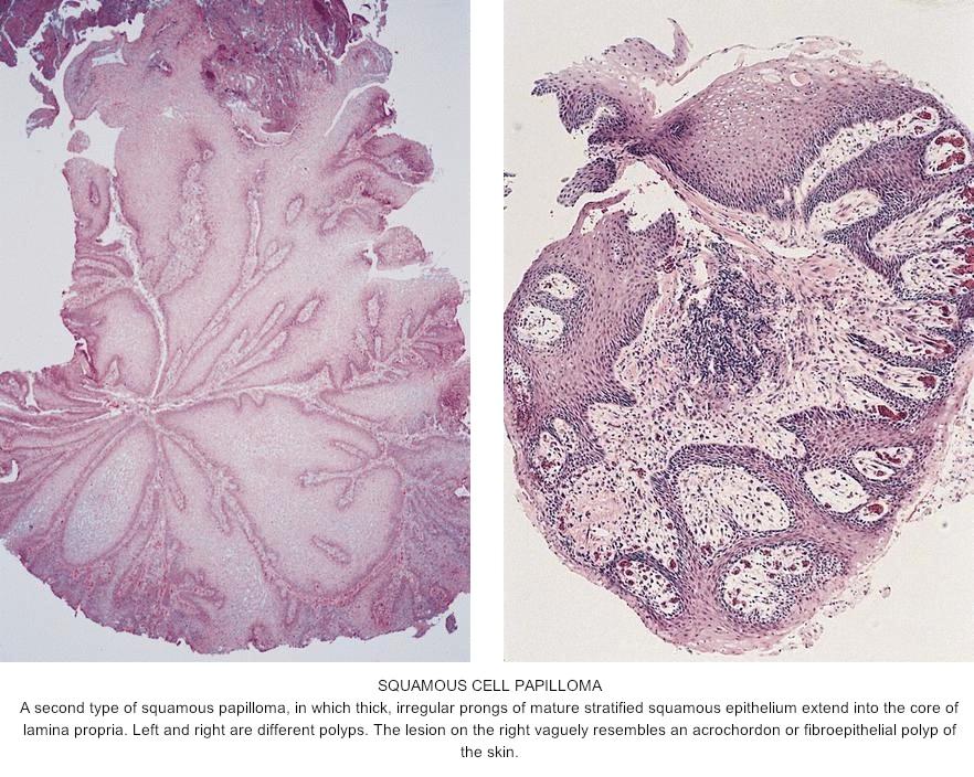 squamous papilloma of skin pathology outlines papiloame în tratamentul nasului