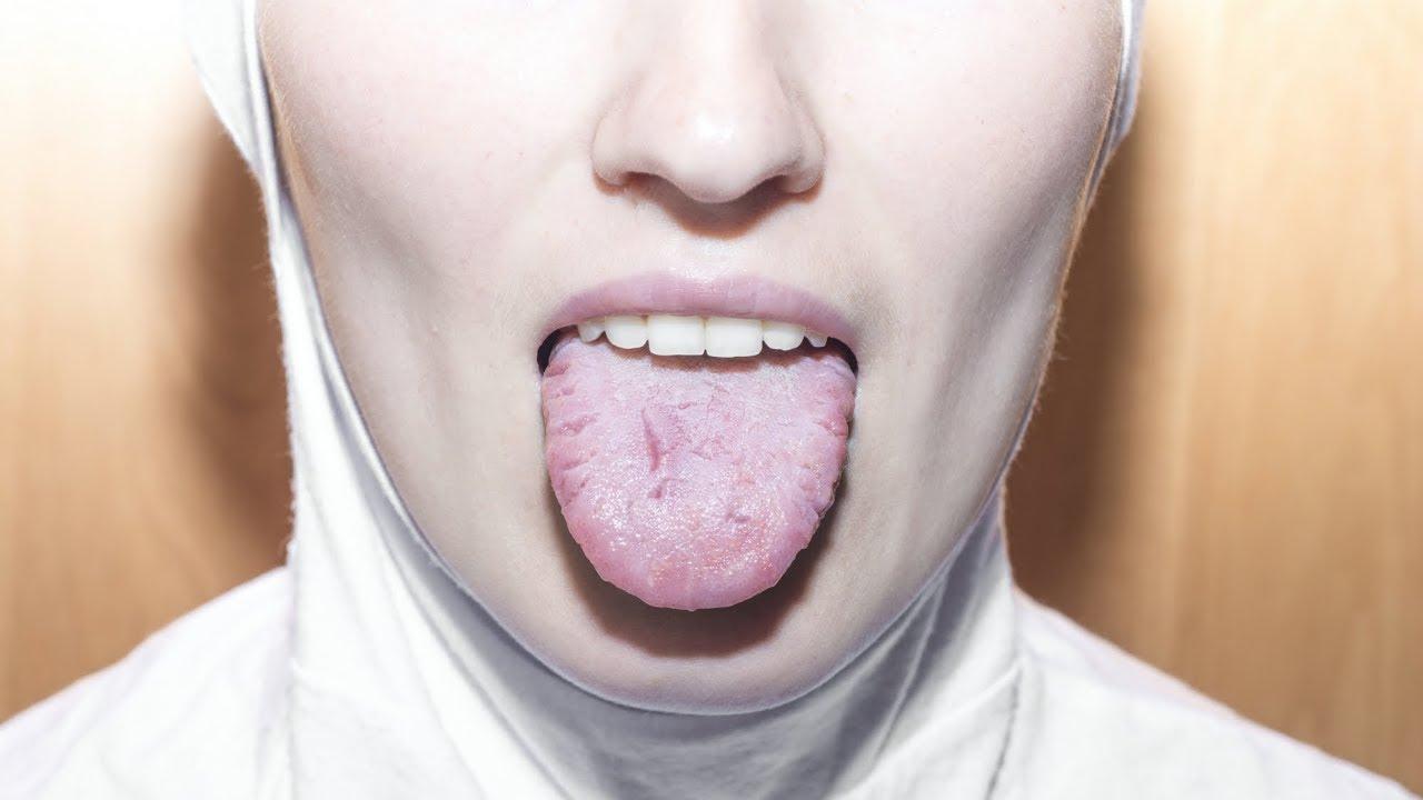 cancerul de gura infecție helmintică, ce să faci