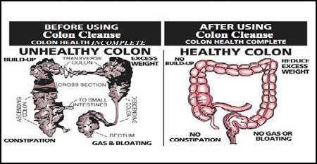 dezintoxicarea colonului cel mai bine cotat