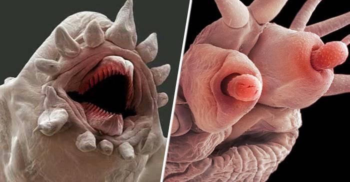 imagini cu paraziți ai pielii umane segmente de vierme