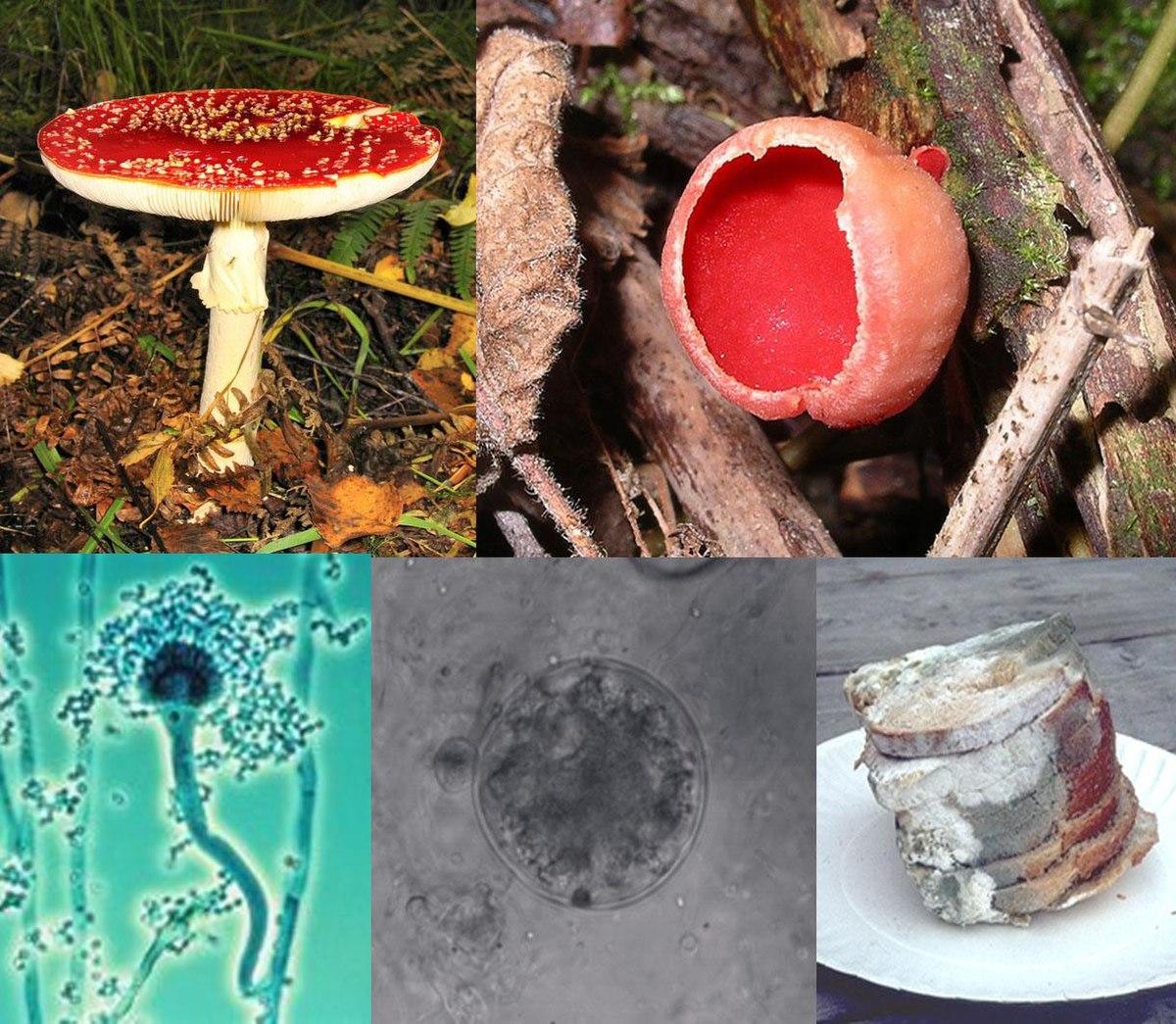 medicament împotriva paraziților și ciupercilor intraductal papilloma path outlines