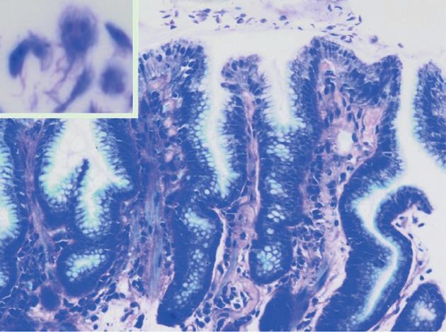 giardia bergen 2020 neoplasmul malign al amigdalelor