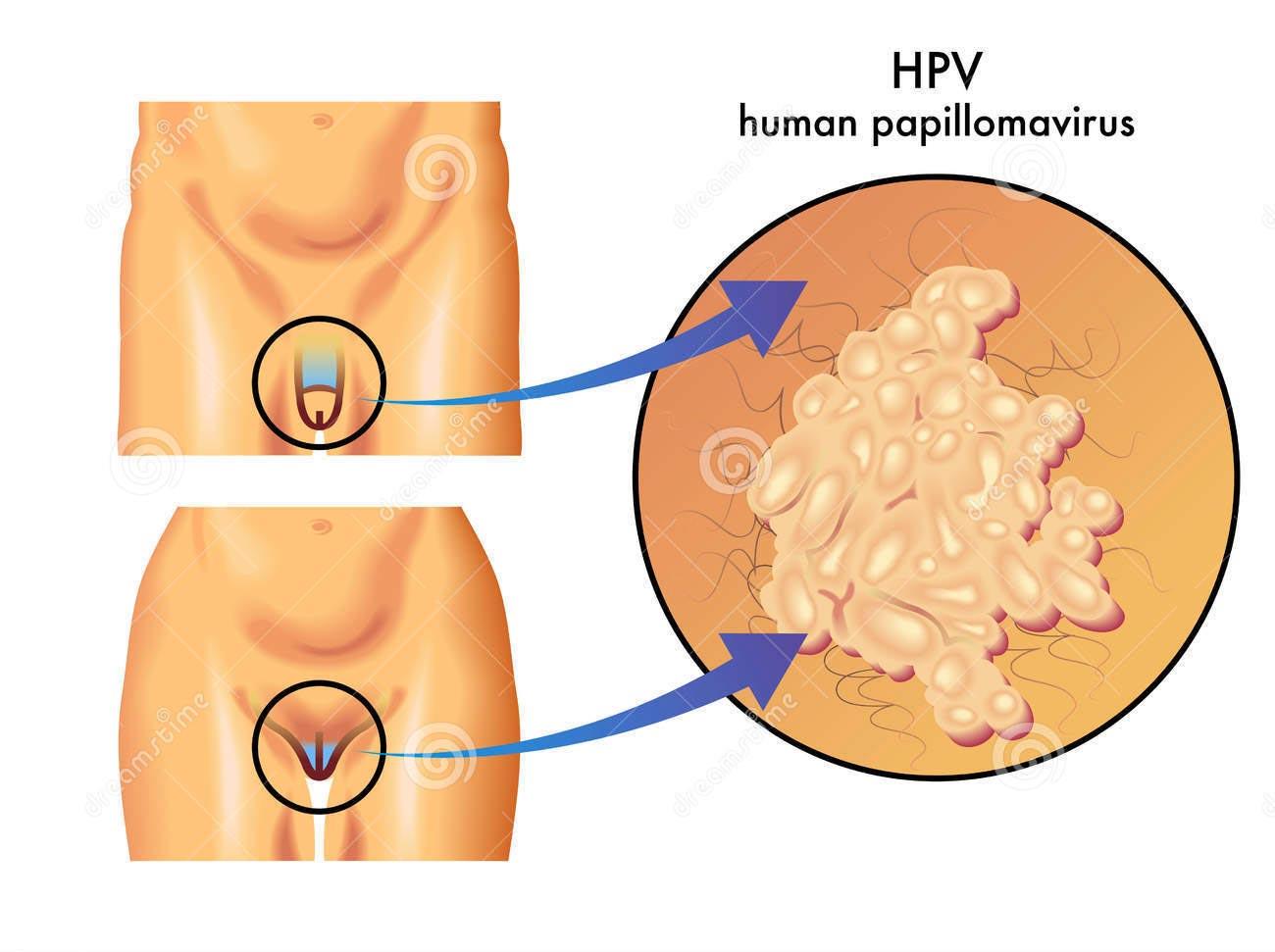 Papilloma e tumore alla gola. PAPILLOMA - Definiția și sinonimele papilloma în dicționarul Italiană