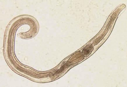 paraziti in corp tratament tratamentul preventiv al helmintiazei