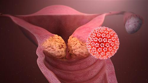 vaccino hpv uomo eta papilloma virus attraverso il bacio