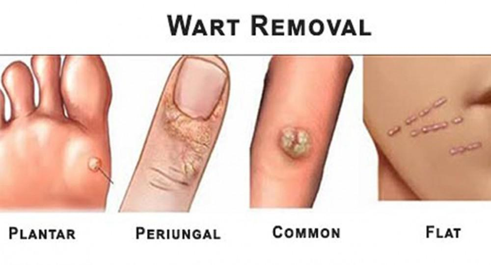 does wart hpv cause cancer hpv high risk genotype 18