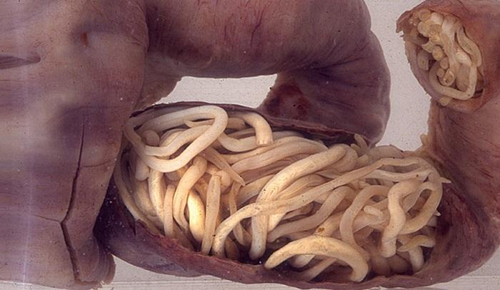 Smecta în tratamentul viermilor simptome de vierme la copii