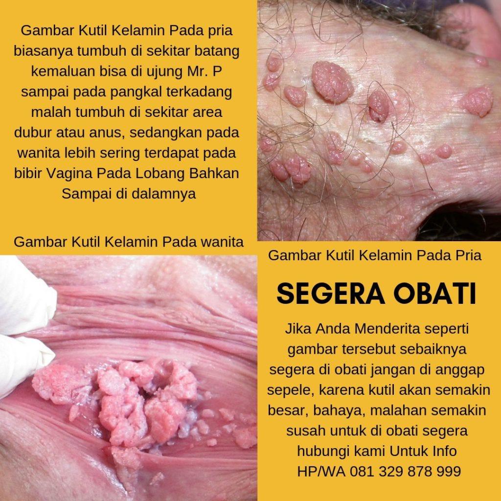 este tratat papilomavirusul uman la femei simptome papiloame și condiloame