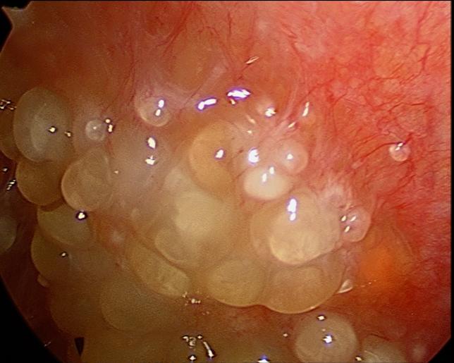 Cancer ovarian, Peritoneal cancer treatment uk
