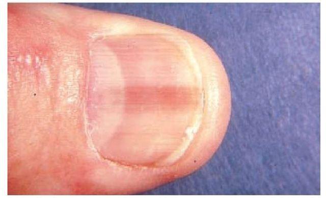 Simptome cancer unghie, Video CSID