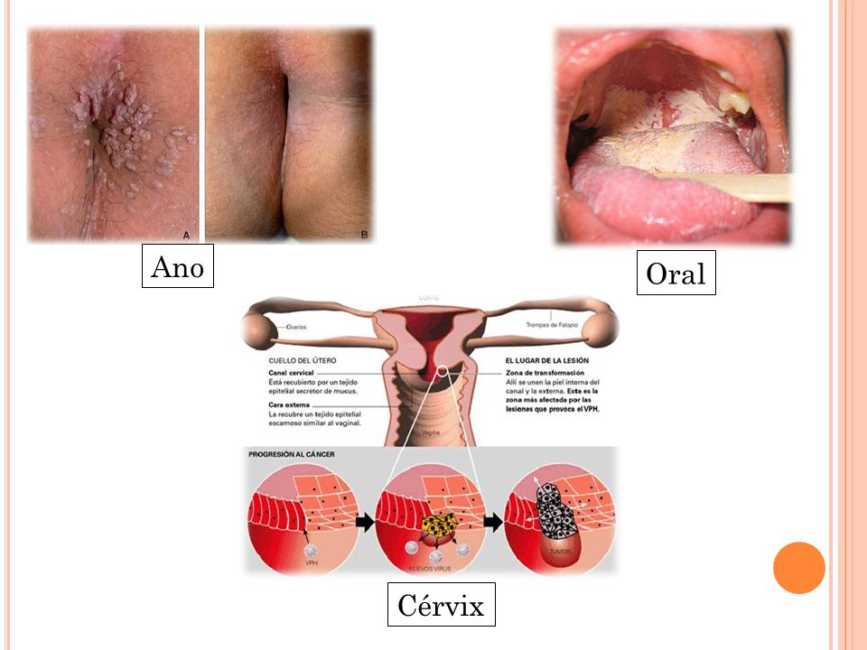 Papiloma ano mujer sintomas. #CancerCervical Instagram posts - leacurinaturiste.ro