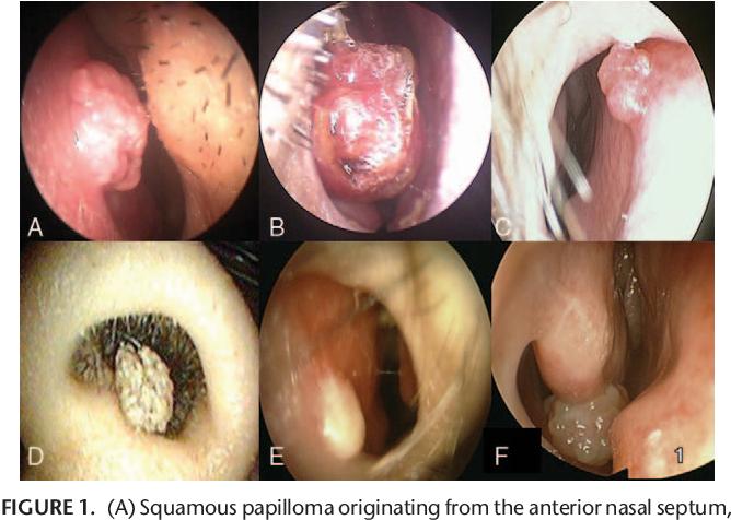 la papillomavirus symptomes