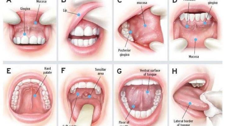 cancer gat varsta cât durează umezirea papilomului îndepărtat
