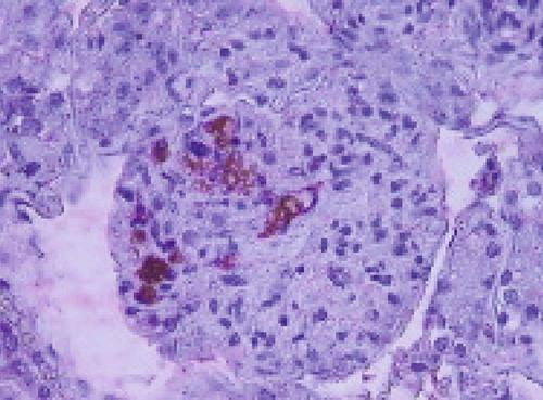 virus bulletin cum se tratează paraziții intestinali