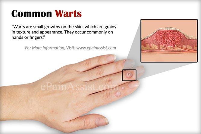common warts on hands during pregnancy medicament bun pentru viermi pentru oameni