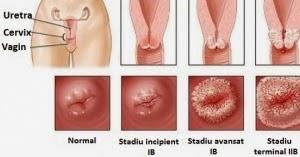 ajuta la scăderea verucilor genitale suplimente pentru plămâni de detoxifiere