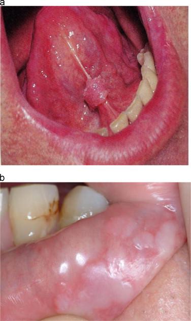 human papillomavirus infection deadly anthelmintic diseases definition