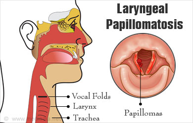 Does hpv cause laryngeal cancer. Case Report