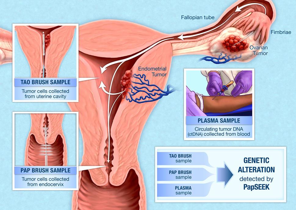 hpv en mujeres primeros sintomas