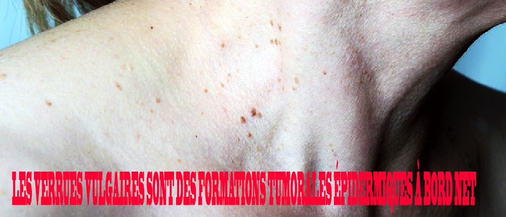 boala papilomului de tratat tip helminți la copii
