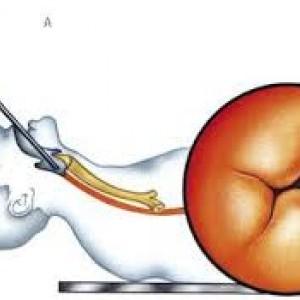 negi ale esofagului condiloamele cauzează axila