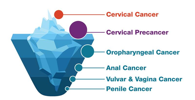 verucile genitale la femei nu mănâncă cum se face enterobioza