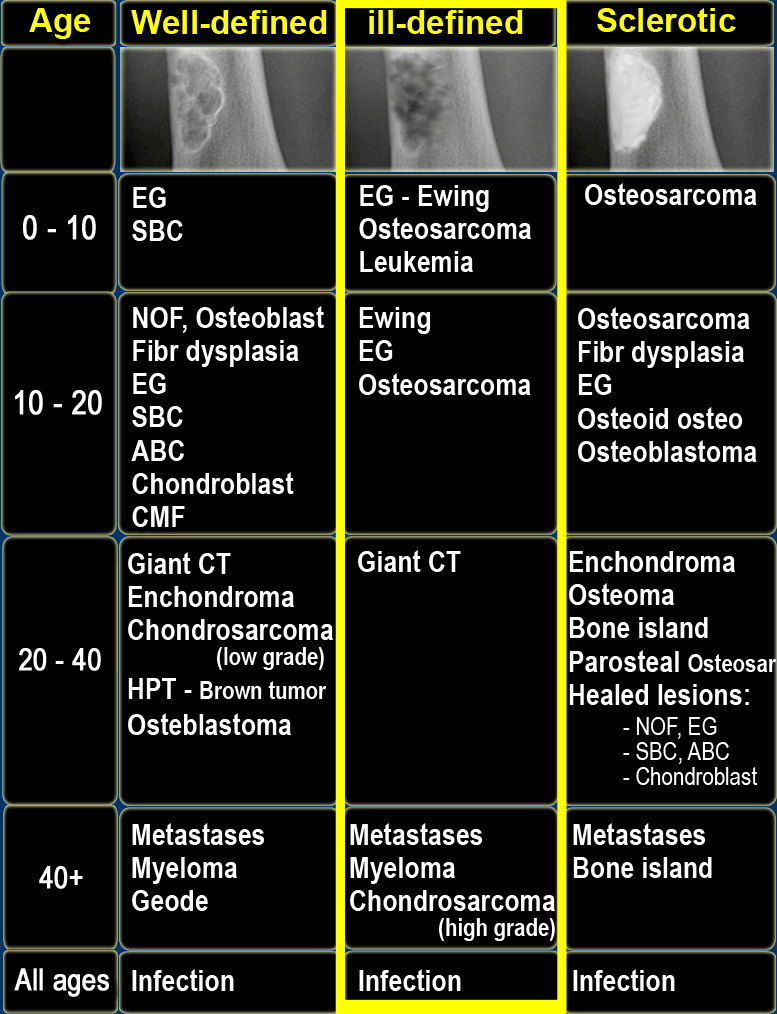 cancer sarcoma ewing adalah