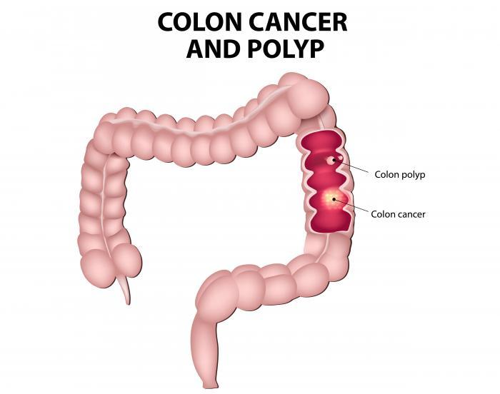 cancer colorectal causes cum să frotiu când menstruația