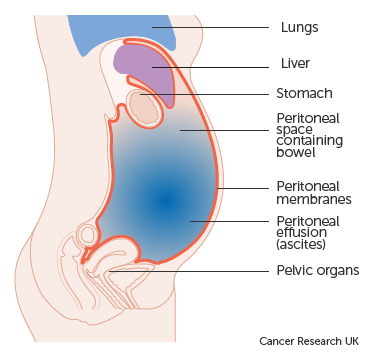 Peritoneal cancer after total hysterectomy - Papilomatosis bovina epidemiologia