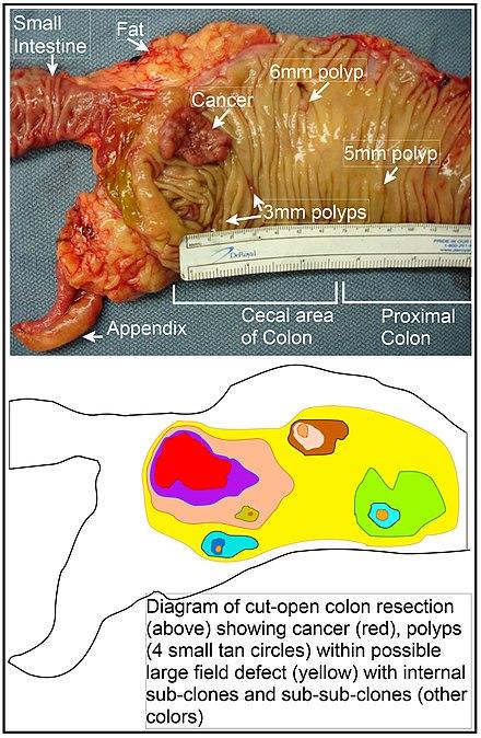 cancer de colon la copii simptome recomandări după îndepărtarea verucilor genitale