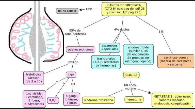 cancer de prostata harrison ce este giardia la copii