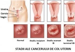 10 simptome de cancer la femei