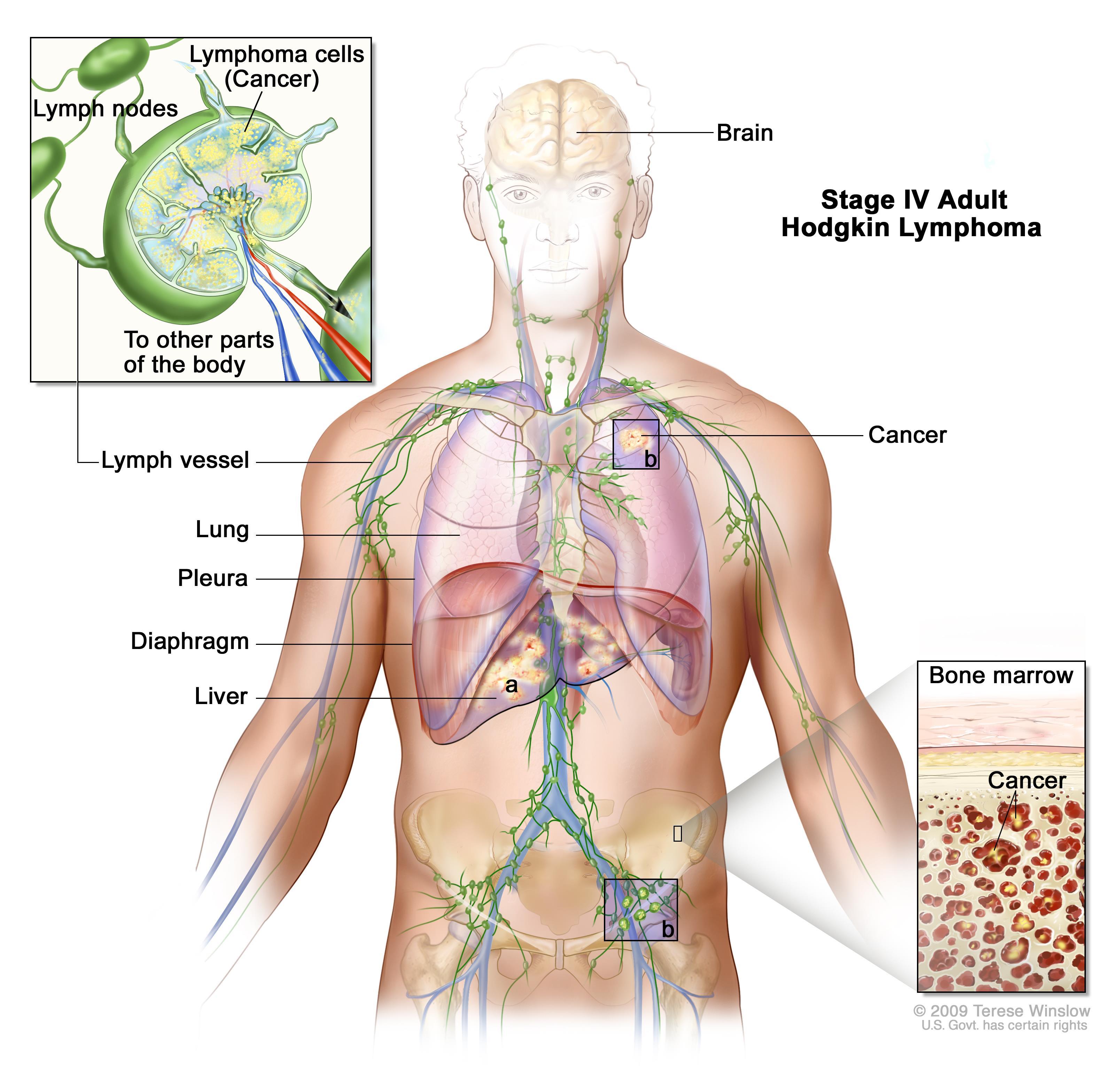 cancer hodgkin stadiu 4 jarabe contra oxiuros