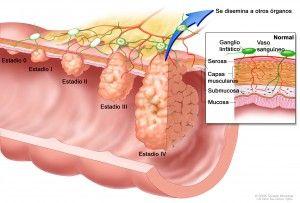 tablete cu vierme cu roți pentru copii papilom de risc oncogen