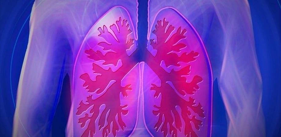 cancer la plamani primele simptome papilom duct