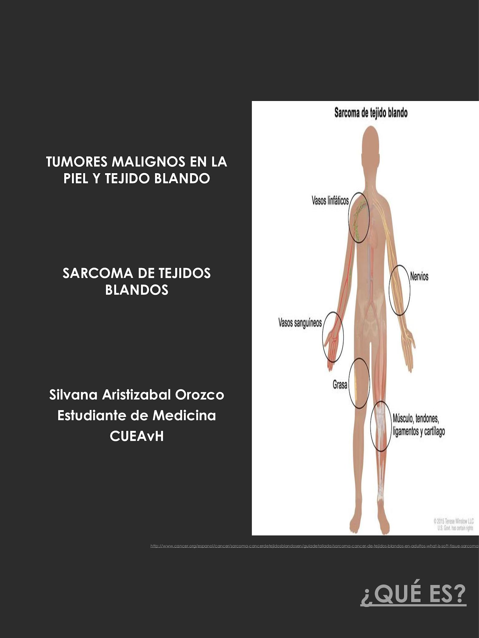 Sarcoma cancer in hand. Sarcoma cancer by age.