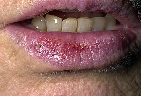 Cancerul labial (buze)
