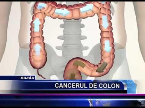 6 simptome ale cancerului de colon pe care nu trebuie să le ignori