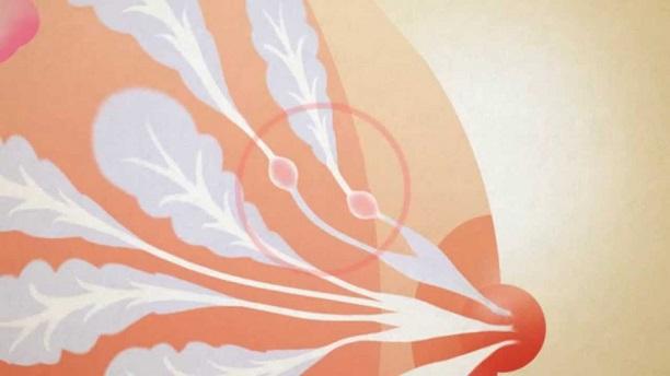 Cauzele papilomelor pe corp la femei - Hpv symptoms throat cancer