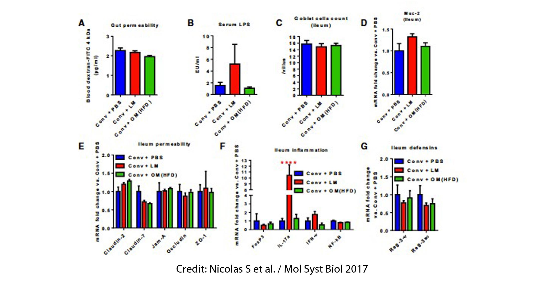 Dysbiosis microbiome - Papilom intraductal trebuie operat