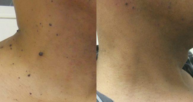 cicatrice după papilom cum arată biciul din scaun