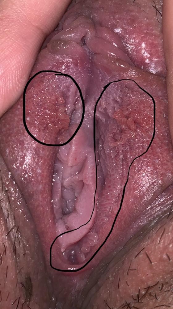 condilomul cauzele bolii detoxifierea bilei