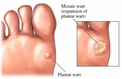 reaparitia condiloamelor papillomavirus verrues genitales