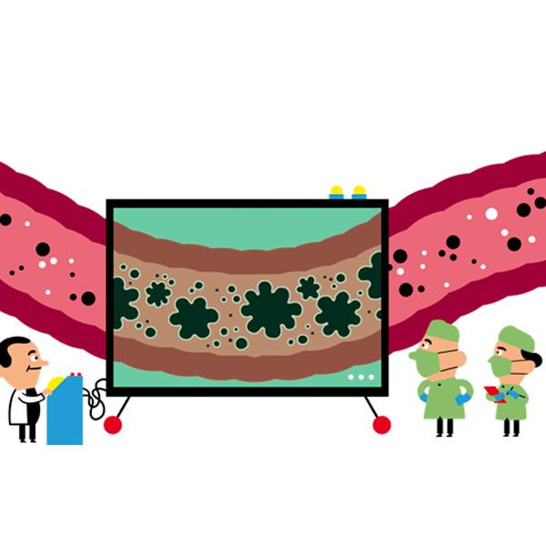 soțul are condilom la femeie hpv virus simptomi kod zena