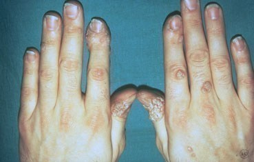 Do warts on hands spread, How does a wart virus spread Hpv cancer gat