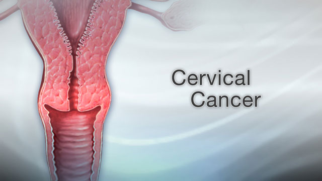 Does hpv cause bone cancer, CANCERUL DE RECT RECIDIVAT | Request PDF