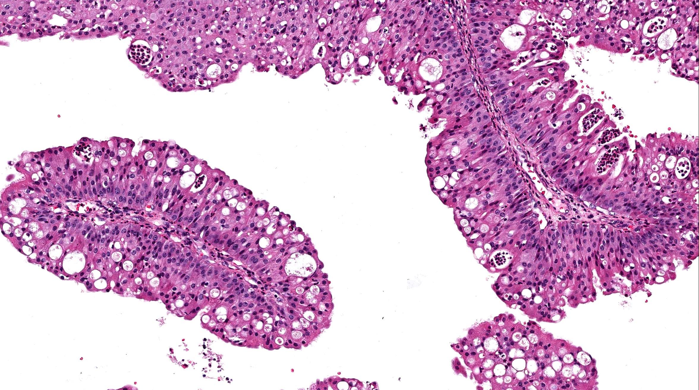 ductal papilloma pathology outline